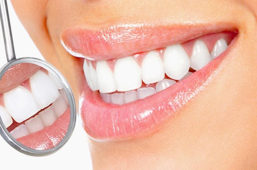 Часто задаваемые вопросы по отбеливанию зубов