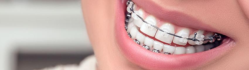 Услуги по ортодонтии в Самаре