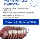 Удаление зуба мудрости ArtSmile